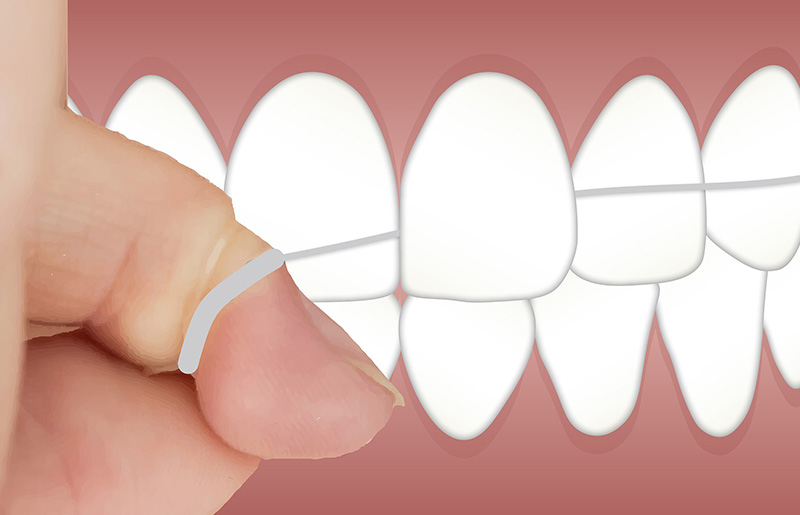Irrigador dental o hilo dental